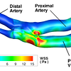 Cycle-averaged viscous wall shear stress magnitude (in Pa) acting on the lumen of a patient specific simulation of an side-to-side anastomosis