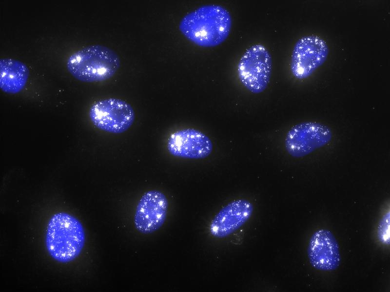 NEAT1_5' lncRNA