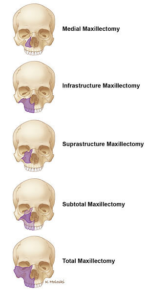 skullfront