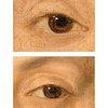 (Fig. 8)  Graphic images in both eyes. The unusual images in the whites of Marie Anne Blanchet's eyes are yet another example of Goya's unique (and odd) imagination. Goya's signature appears in both eyes.