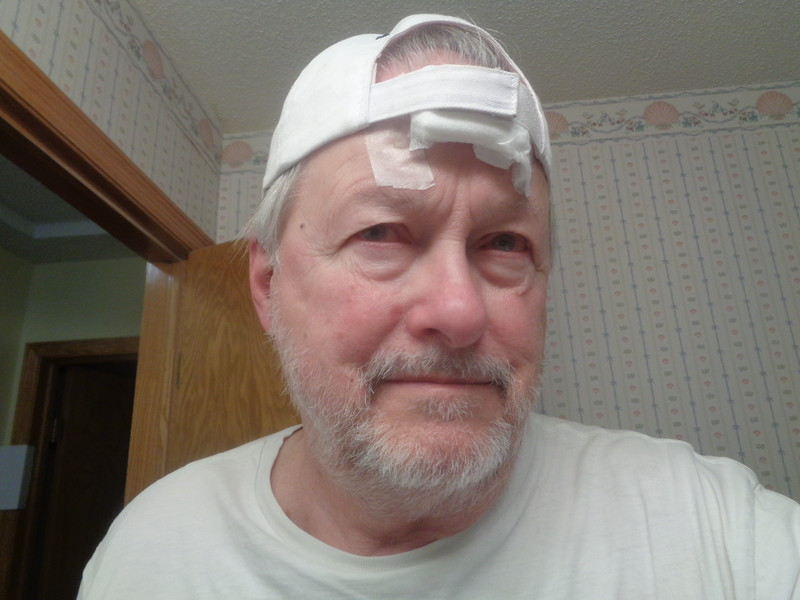 Pressure bandage - first operation.  Ball cap helps.