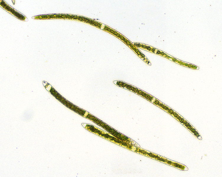 Closterium ehernbergii