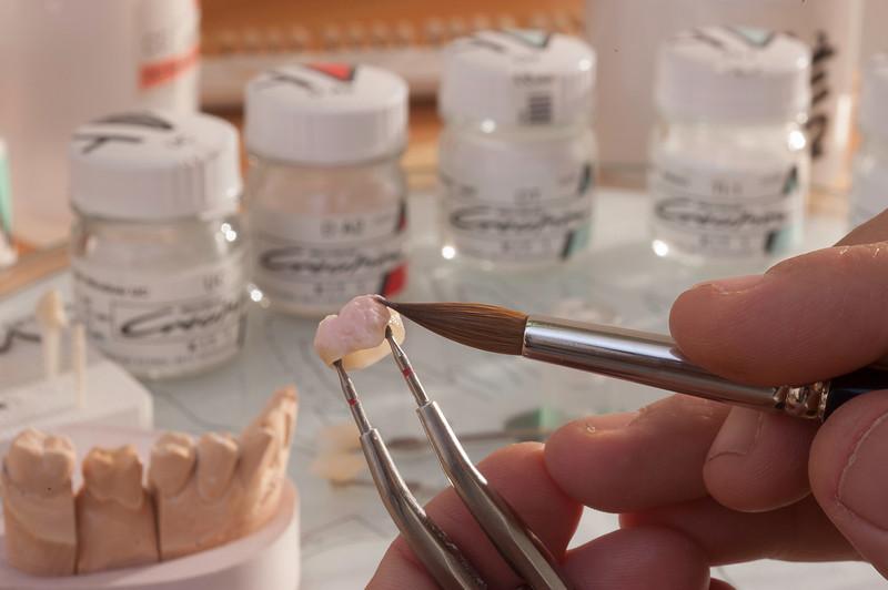 Close trabalho do protético