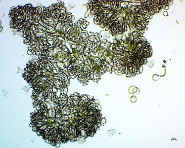 Dolichospermum with stalked, filter-feeding zooplankton.