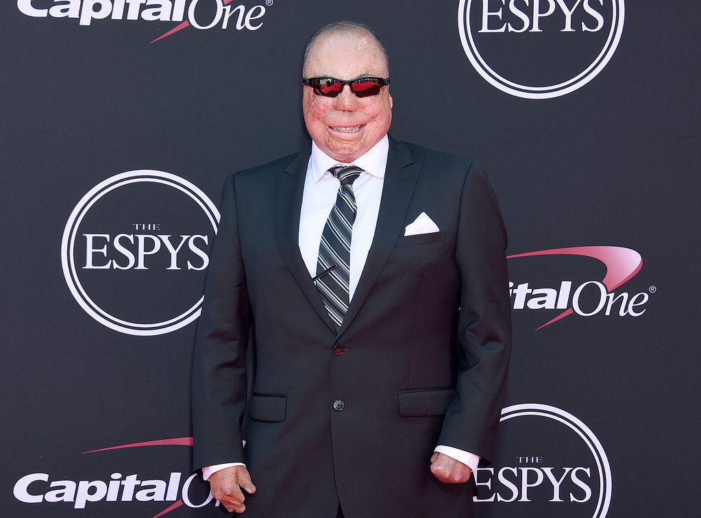 . Israel Del Toro arrives at the ESPYS at the Microsoft Theater on Wednesday, July 12, 2017, in Los Angeles. (Photo by Jordan Strauss/Invision/AP)