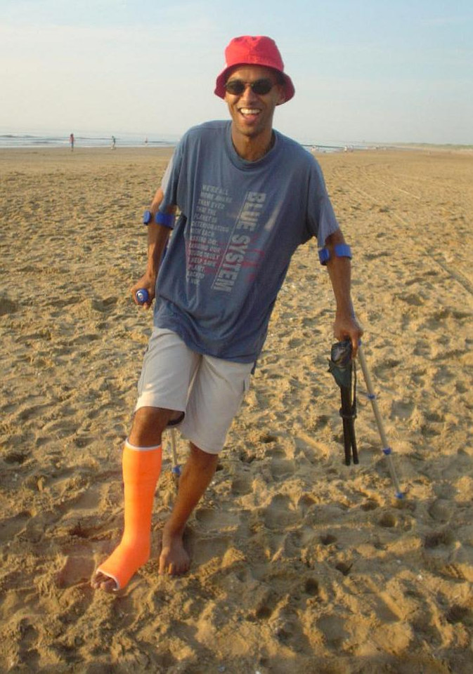 Madou with his totally cool orange cast, after breaking his ankle bone during frisbee practise at the TU Delft