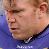** EDS. NOTE: GRAPHIC CONTENT ** Baltimore Ravens center Matt Birk sits on the bench with a cut on the nose during the third quarter of an NFL football game against the Denver Broncos, Sunday, Nov. 1, 2009, in Baltimore. (AP Photo/Nick Wass)