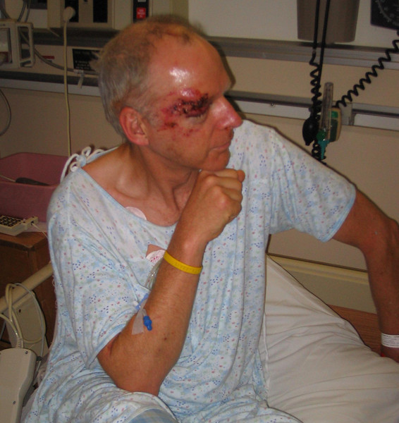 Three weeks before race day: run over by a truck and helicoptered to Stanford with fractured skull, eye socket, cheek bones, shoulder trouble, road rash...