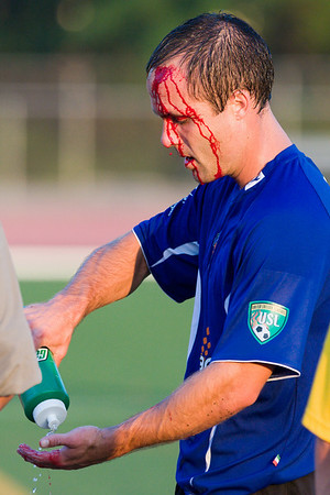 Charlotte midfielder Jonah Long dealing with a gash on the forehead - he would return to the match