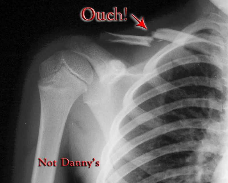 Not Danny's but probably similar! (& this one is the Right clavicle [collar bone])