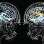 Concussion Education