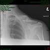 Collar Bone 2