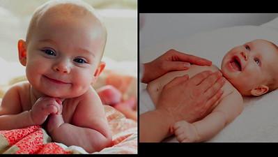 Vascular Birthmarks Found