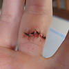 Five Stitches <br /> Silly me, scissors are for paper!