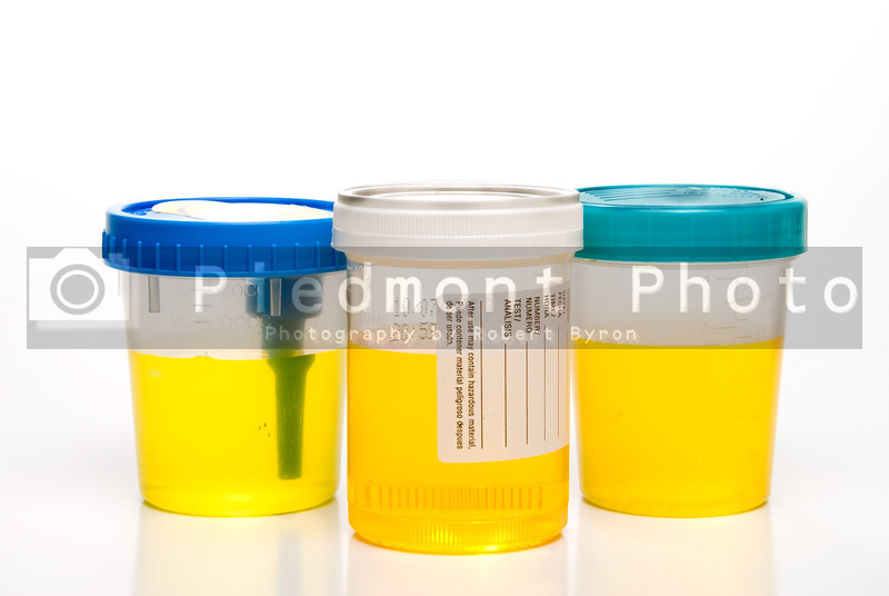 Fresh urine samples in plastic medical containers.