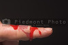 A bleeding finger with a bloody band-aid.