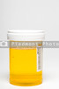 A fresh urine sample in a medical container.