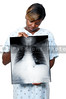 A beautiful woman black African American woman patient holding an x-ray