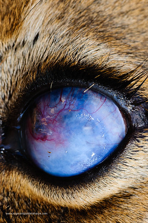 Lion (Panthera leo) with an injured eye. The eye has had a traumatic event, perhaps a claw/thorn causing a penetrating corneal lesion which has resulted in a pan-opthamia (generalized infection of the eye) with subsequent migration of healing cells and fluid into the cornea (blue color) and vascularization ( blood vessel infiltration) which is an attempt by the body to heal the lesion - unfortunately it has also resulted in a glaucoma (swelling of the eye) - the outcome of which is - even if the cornea heals he will probably end up permanently blind with the eye eventually collapsing and shriveling up. Mashatu Game Reserve. Northern Tuli Game Reserve.  Botswana