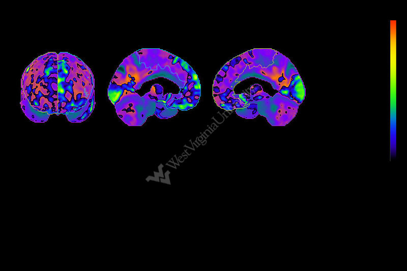Using brain scans, WVU researchers have found physiological evidence of 'chemo brain,' mental fogginess reported by some patients undergoing chemotherapy.
