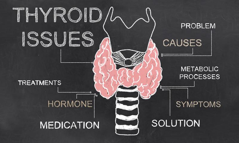 4 Practical Tips for Hashimoto's Thyroiditis & Hypothyroid Symptoms - AdobeStock 104411972 L
