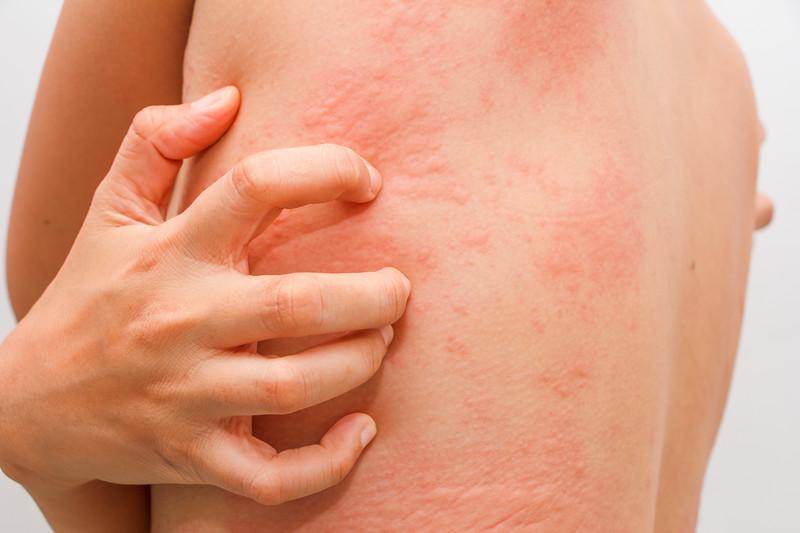 How Mason Overcame Chronic Reflux and Skin Rash Naturally - AdobeStock 119502501%20 %20Copy L