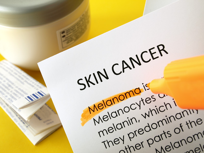 Skin cancer, melanoma
