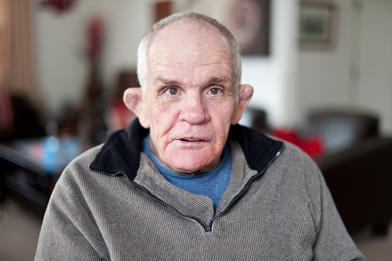 Man with a disability looking at camera.  He is seated in his living room, and has a pleasant, cheerful, welcoming expression.