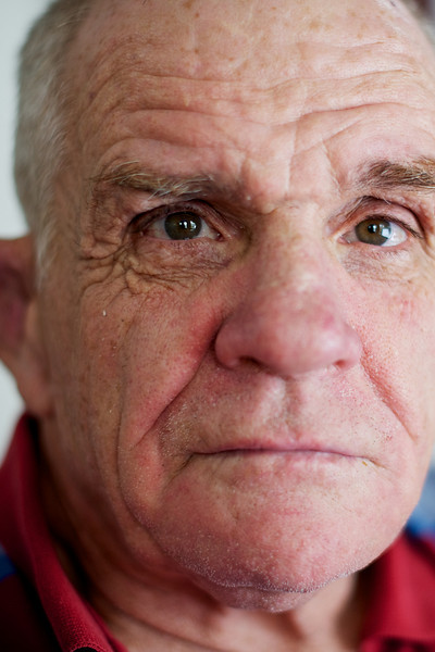 Man with a disability in his sixties with gentle eyes and a warm expression.