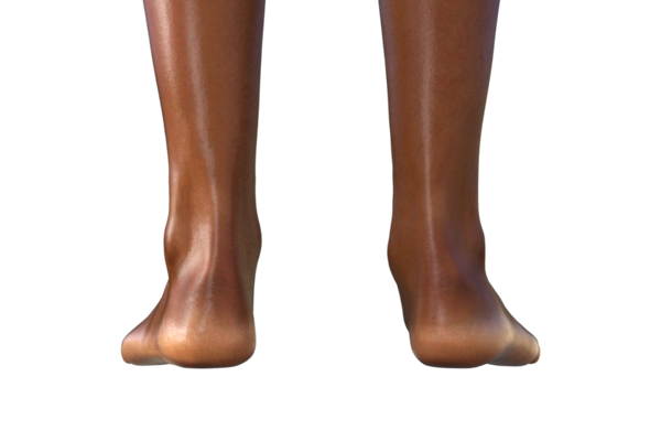 Pes Planus or Flat feet, pronated feet