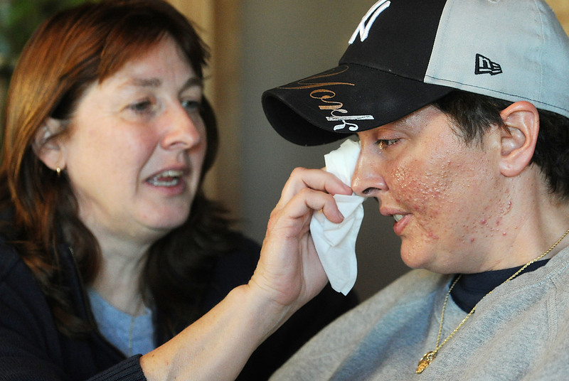 Dana Beck, left, wipes a tear from her partner Mary Ann Schmeisser during an emotional moment at their Millcreek Township home on Dec. 12. Schmeisser is an Erie police officer and was severely injured on the job when she was hit by a vehicle while investigating a police call on the night of Dec. 14, 2011. Since the accident, Schmeisser and Beck are working together to stay upbeat and positive as Schmeisser heals. ANDY COLWELL/