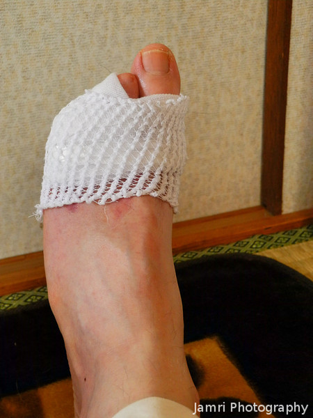 The last day of wearing bandages on my left foot.<br /> May sixteenth was the last day of having to wear a bandage on the left foot, giving me hope of getting back into my running.