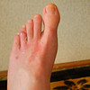 No more bandage.<br /> My foot had heald up well enought by May 17th, so didn't need to wear the bandage from then.