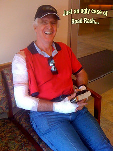 The good news?  Just an ugly case of road rash...  But the shirt and jeans will be put out of service forever!