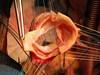 Surgery & Cath Lab :