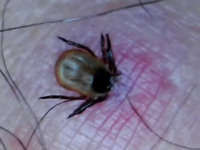 Tick Bite Information/Removal 8