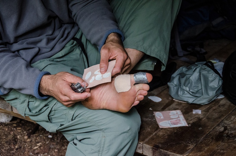 tending to my feet after 3 days of hiking in wet sox and boots