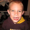 Koben's missing tooth