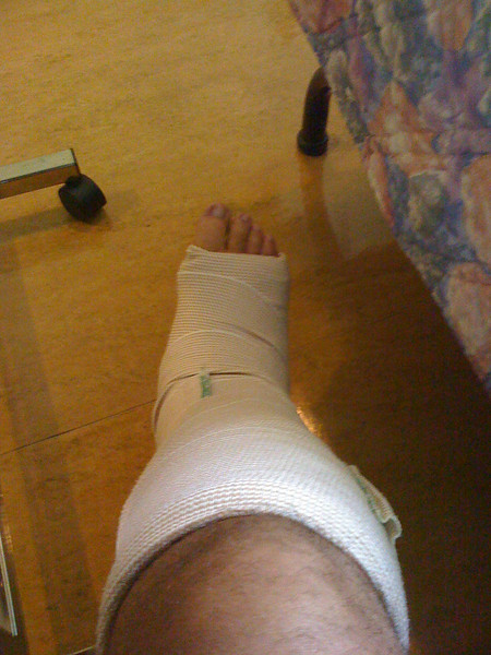 2009 07 07 - Right foot