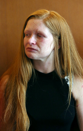 KEN YUSZKUS/Staff photo    Sarah Turner is the victim of an alleged beating by Peter Turco. She was in Salem District Court for the case against Peter Turco. 08/17/16