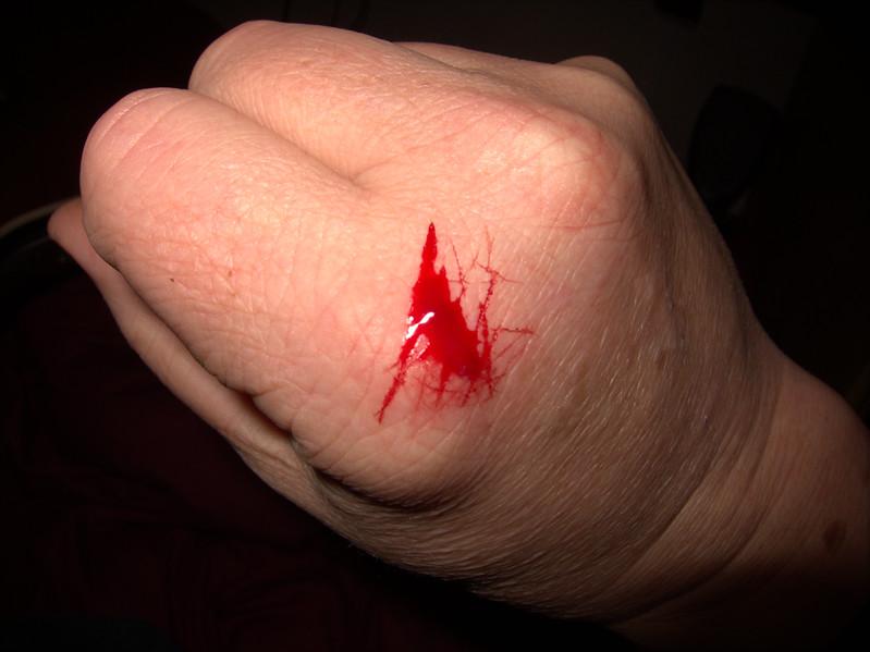 Bloody Hand 15th Nov 2011