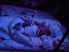 Bethany, Day 3.  The blue light effect is not a photo error -- to counter jaundice, Bethany is under a special blue-light photo-therapy.  <br /> <br /> Spot the little eye patch to pretect here little eyes.  And both arms firmly fixed down to stop her pulling out the various tubes.