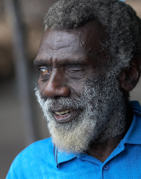 Happy man with bad eyes.  Eye disease is quite common in Tanna.