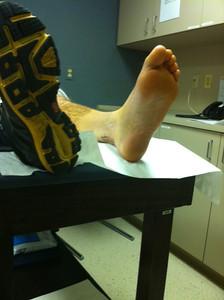 Stix foot