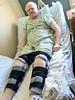 After bilateral quadriceps repair surgery.