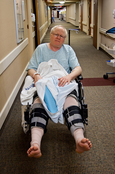 Me shortly after my fall and quadriceps surgery.