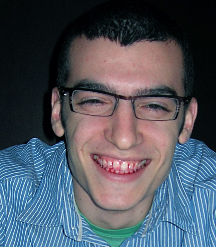 Lonny with Raspberry Teeth