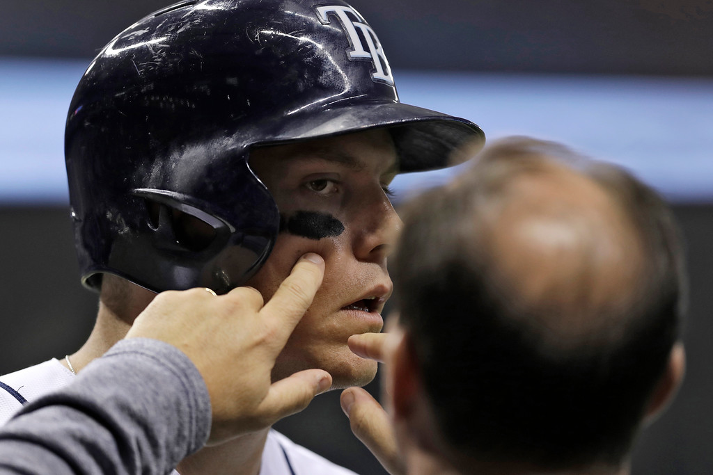 . Tampa Bay Rays trainer Ron Porterfield, right, removes a piece of dirt from Logan Morrison\'s eye during the first inning of the team\'s baseball game against the Detroit Tigers on Wednesday, April 19, 2017, in St. Petersburg, Fla. (AP Photo/Chris O\'Meara)
