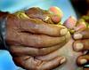 Healer-hand