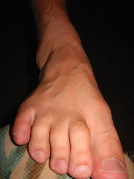 At the time, there was a reason for a picture of Jason's foot.  Now, who knows!